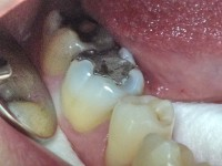 Dental diseases 8