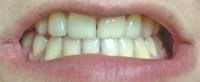 Teeth whitening - before 4