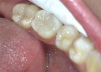 Dental diseases 4